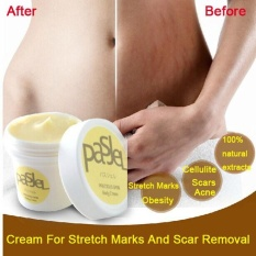 Stretch Marks Repair Cream Pasjel Thailand Maternity Products Whitening - intl