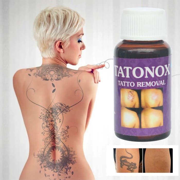 Promo TATTOX / TATONOX OBAT PENGHAPUS TATO / KUTIL AMAN DAN AMPUH TATTONOX original