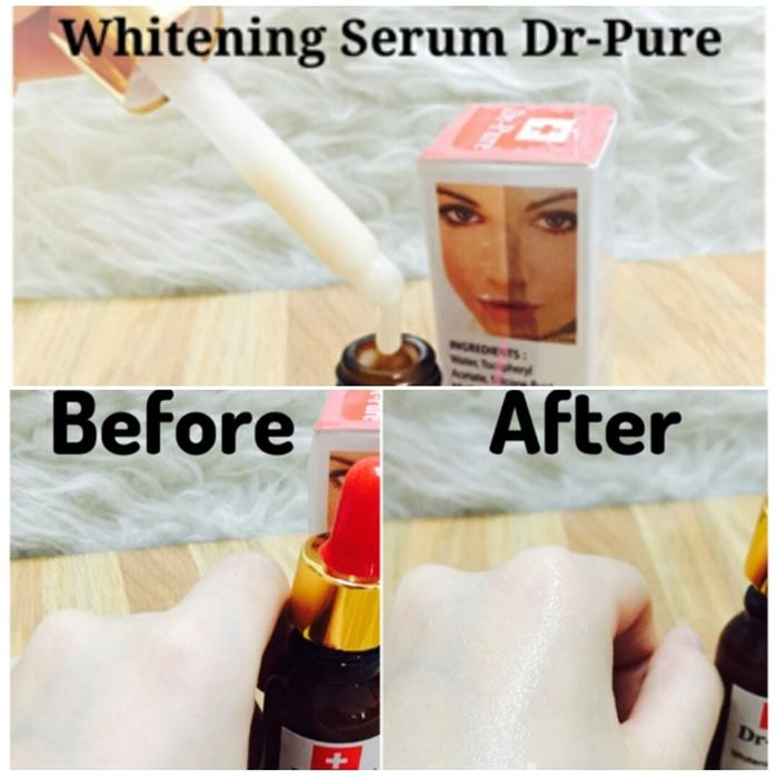 Dr Pure Serum Whitening BPOM Original - Dr Pure Pemutih Obat Flex Asli - Obat Penghilang Flex Bekas