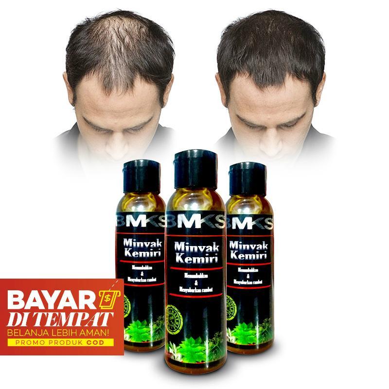 Minyak Kemiri Penumbuh Rambut Original 100% Asli Kemiri - Obat Penumbuh Rambut Aman Untuk Bayi - Obat Penumbuh Rambut Botak - Mencegah dan Mengobati Kebotakan