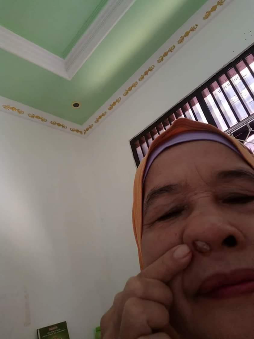 Jual Minyak Varash Classic Promo Healing Oil Asli Denpasar Bali Tumor Hidung Lepas Sehat Kembali Berkat Original