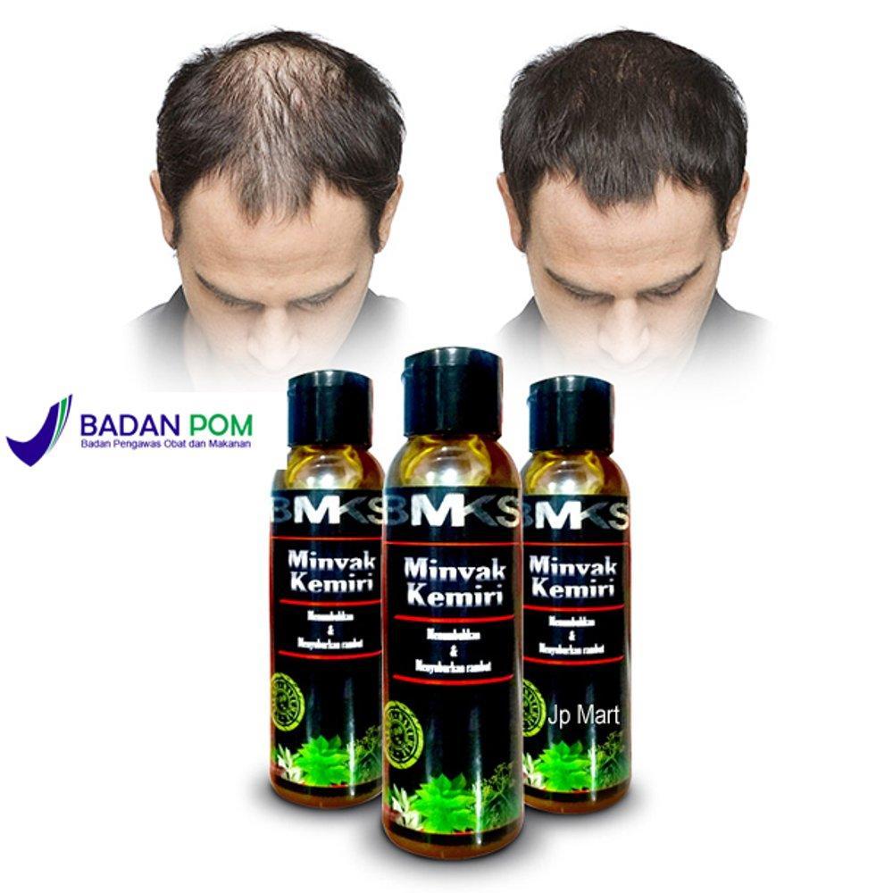 Minyak Kemiri Asli Penumbuh Rambut - Minyak Kemiri BMKS Original 100% BPOM - Minyak Kemiri Untuk Bayi - Vitamin Rambut - Minyak Penumbuh Rambut Cepat - Penyubur Rambut - Obat Penumbuh Rambut Botak