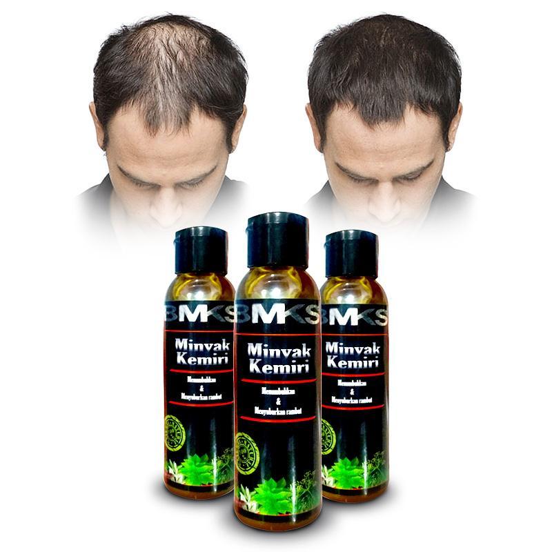 Minyak Kemiri Penumbuh Rambut Original 100% Asli Kemiri - Obat Penumbuh Rambut Aman Untuk Bayi - Obat Penumbuh Rambut Botak - Pemanjang Rambut - Pelebat Rambut - Mencegah dan Mengobati Kebotakan