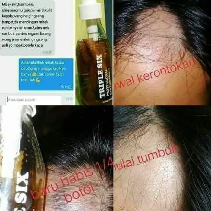 TRIPLE SIX PROFESSIONAL HAIR TONIC / TONIK PENUMBUH RAMBUT / ANTI HAIRLOSS TONIC / SERUM PENUMBUH