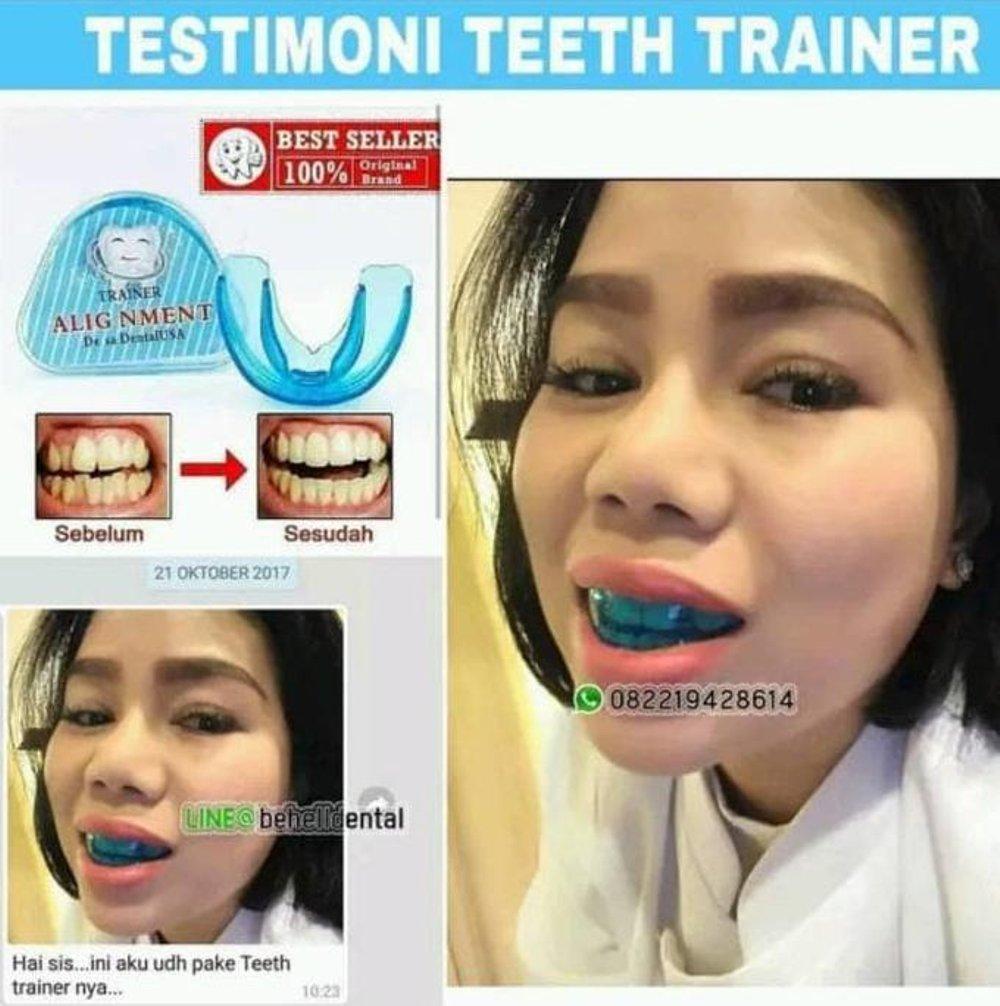 PROMO ortho trainer . alat perapih perapi gigi . behel pelurus gigi . teeth STOK TERBATAs di lapak bubushop kinkenshop12