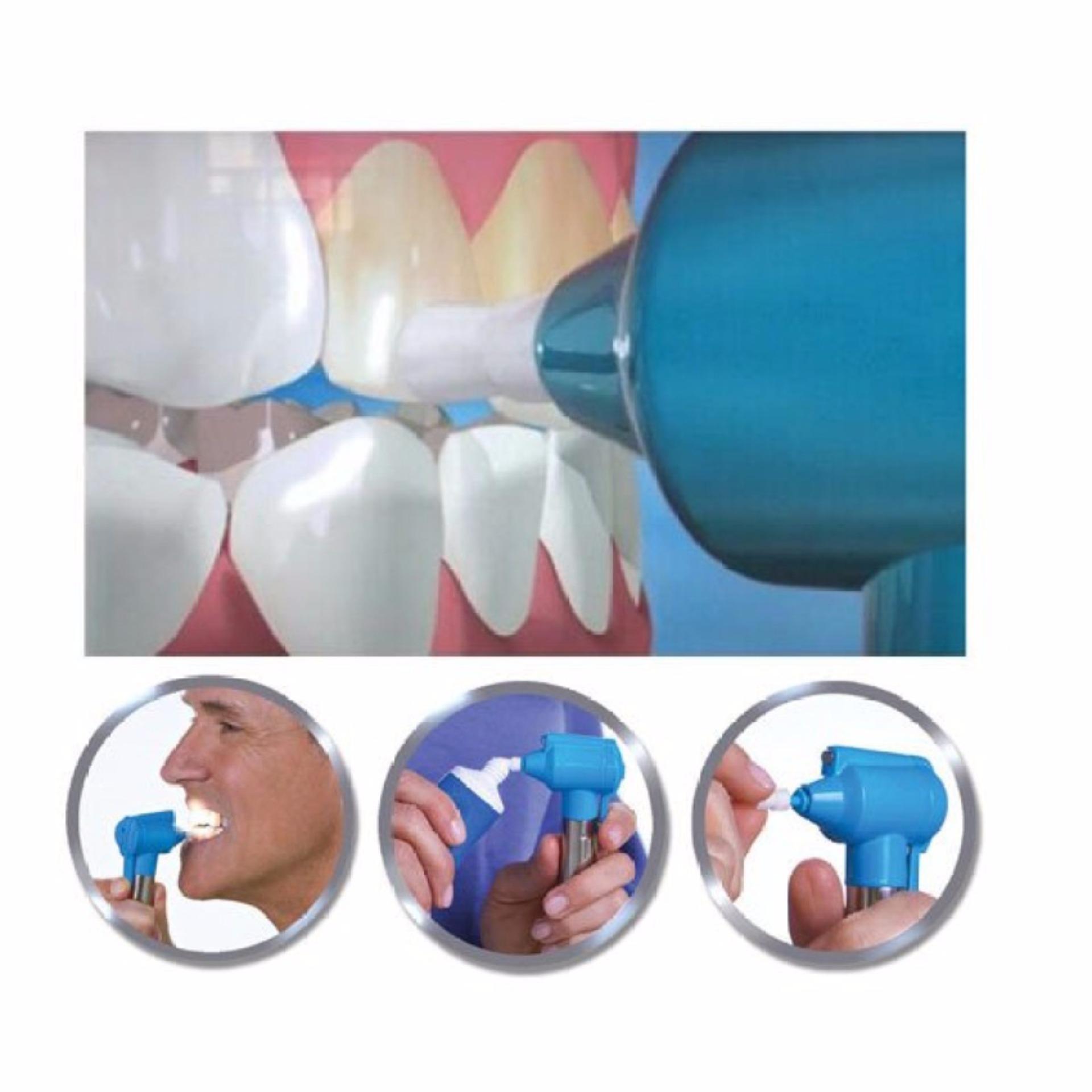 Cari Bandingkan Bukka Alat Pemutih Gigi Luma Smile Pembersih Noda