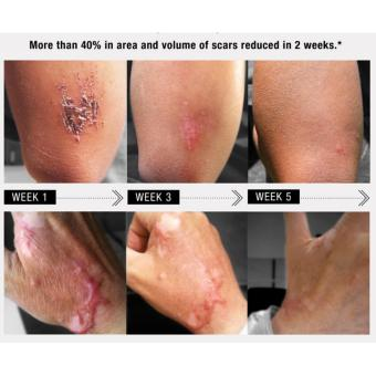 Elicina Plus Snail Cream 40g - Penghilang Jerawat Bekas Luka Anti Aging Flek Anti Jerawat - 4