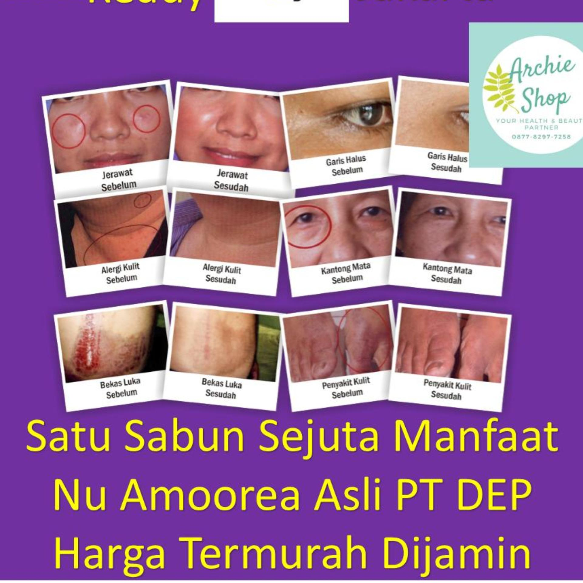 Eshop Checker Sabun Nu Amoorea Beauty Bar 125 Gr Atau Setengah Amorea Original