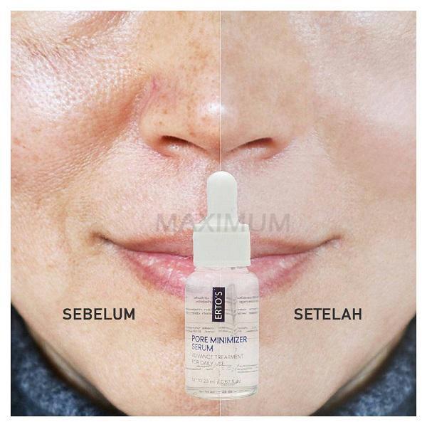 Ertos Pore Minimizer Serum Serum Pengecil Pori Pori Bpom