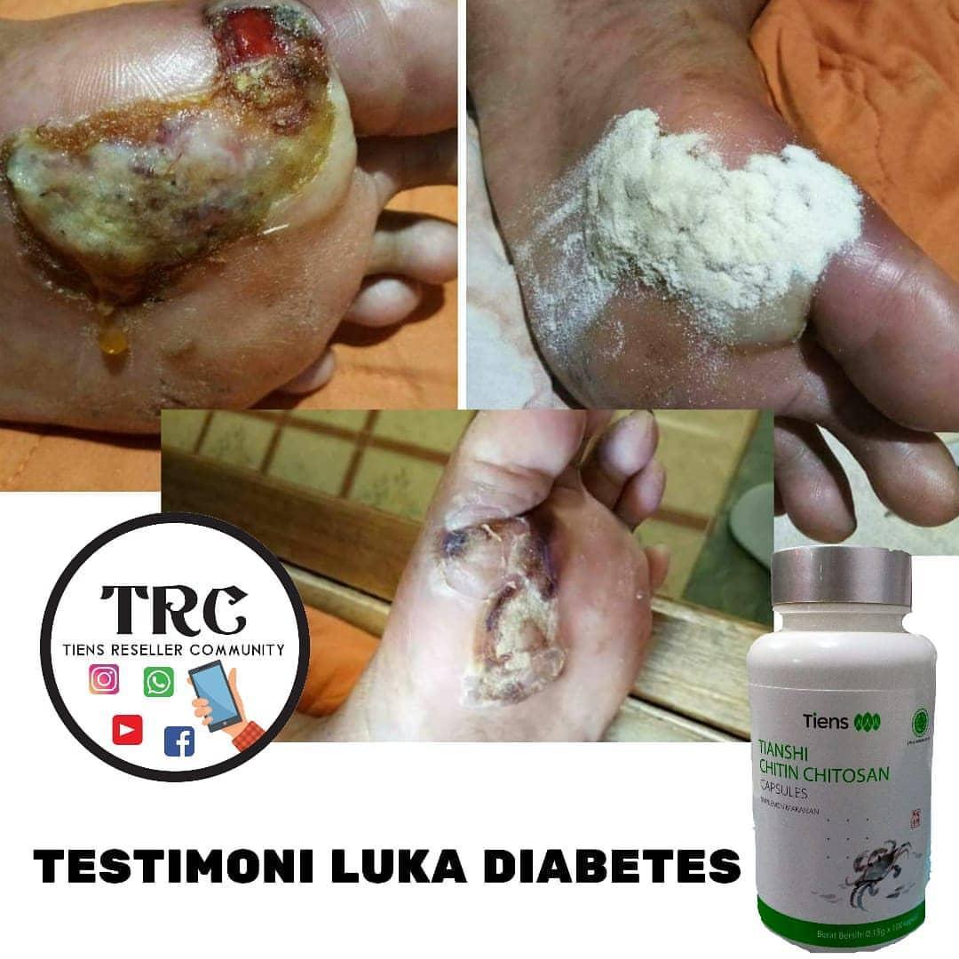 luka diabetes mellitus